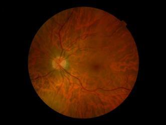 retina eva permanyer